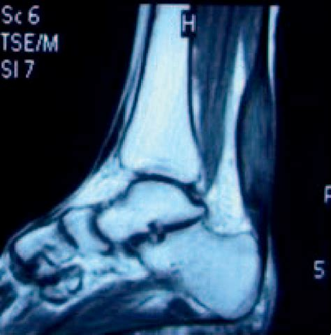 Figure 1 from Bilateral Achilles Tendon Xanthomas in a
