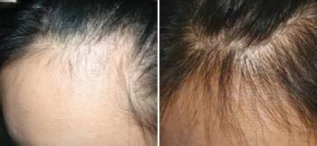 Derma Roller Before & After Pictures Acne Scars, Stretch