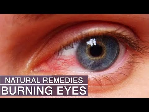 Natural Remedies for Dark Circle Removal   Home Remedies